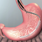 Intragastric Balloons: Closing the Gap on Weight Loss Treatment Options