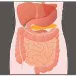 Small Intestinal Bacterial Overgrowth in Modern Bariatric Surgery