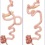 Noninsulinoma Pancreatogenous Hypoglycemia after Roux-en-Y Gastric Bypass:  A More Simple Operative Treatment