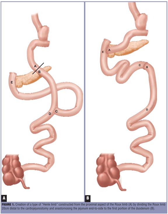 Noninsulinoma Pancreatogenous Hypoglycemia After Roux En Y Gastric