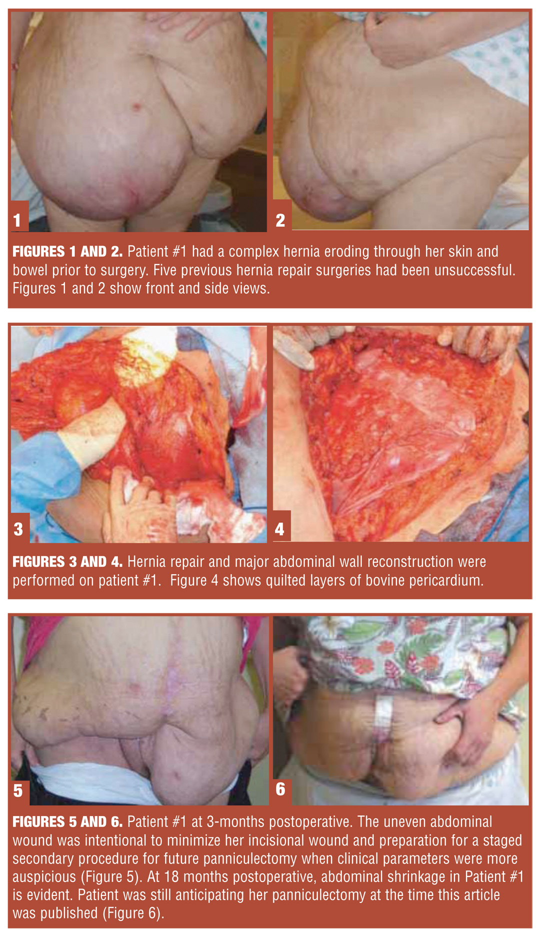 Use of Bovine Pericardium in Complex Hernia Repair