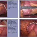 Laparoscopic Bi-Directional Jejuno-Jejunostomy Anastomosis With a Linear Stapler